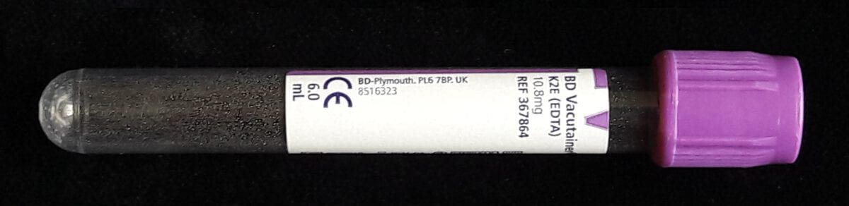 EDTA-buis 6 ml paarse dop